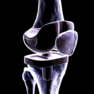 Knee Replacement Products