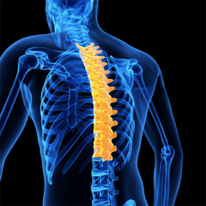 Spine Solutions