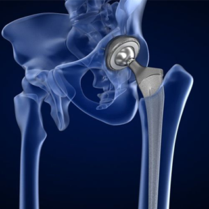 Hip Replacement Products