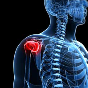 Shoulder Replacement Products
